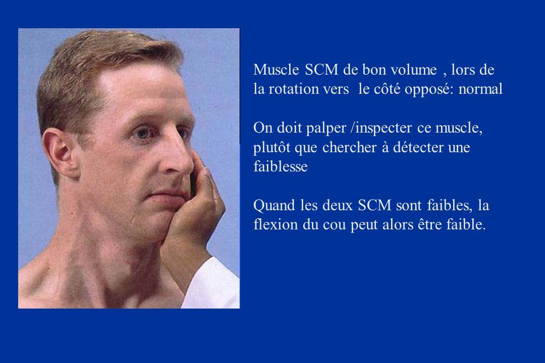 Muscle SCM de bon volume , lors de la rotation vers le côté opposé: normal