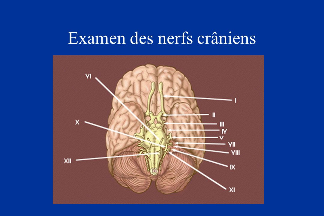 Examen des nerfs crâniens