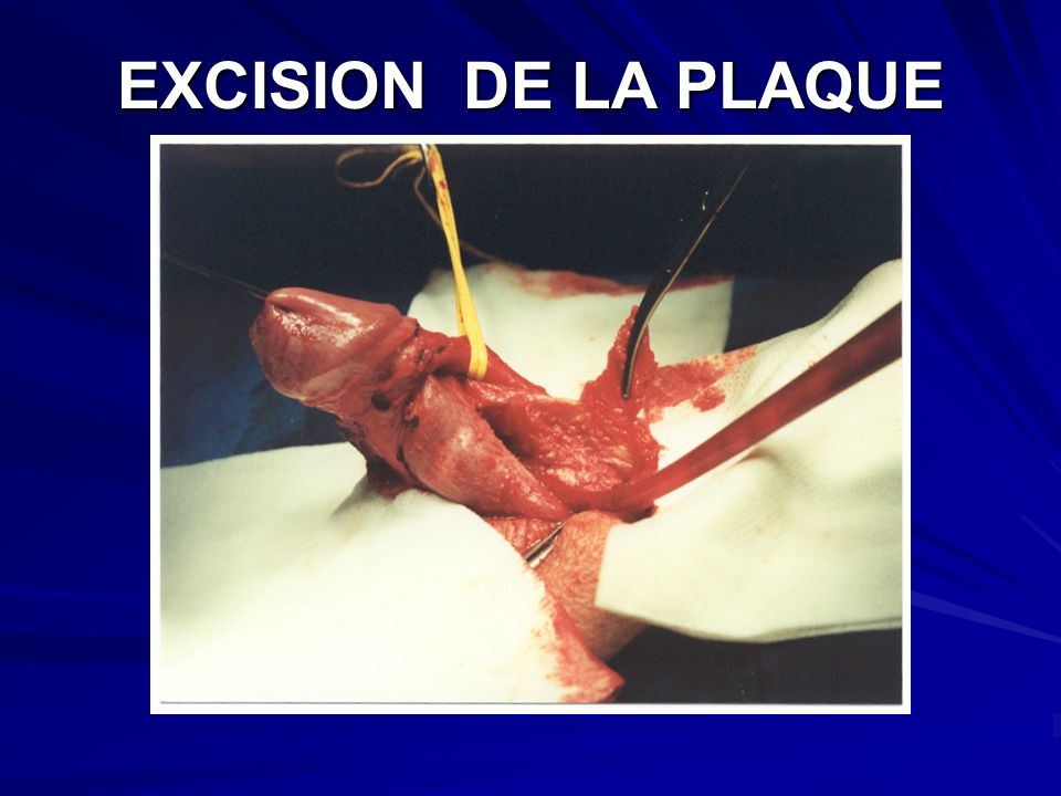 EXCISION DE LA PLAQUE