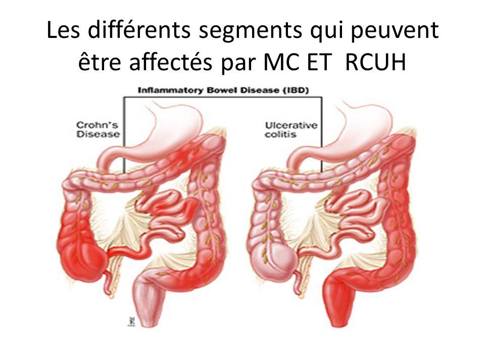 Les différents segments qui peuvent être affectés par MC ET RCUH