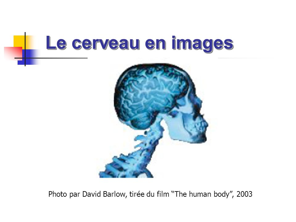 Le cerveau en images Photo par David Barlow, tirée du film The human body , 2003