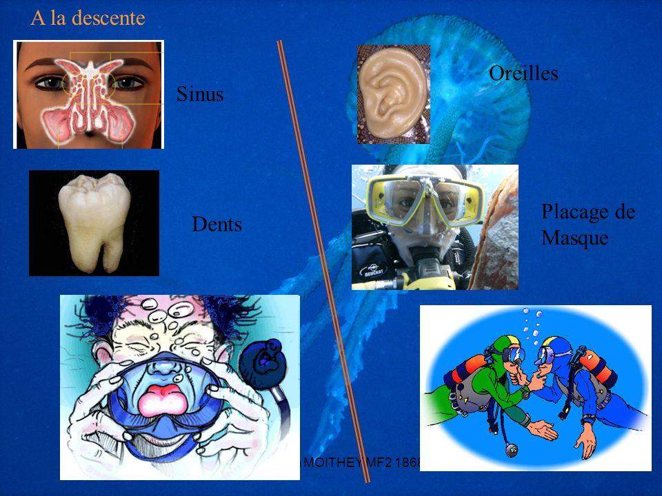 A la descente Oreilles Sinus Placage de Masque Dents
