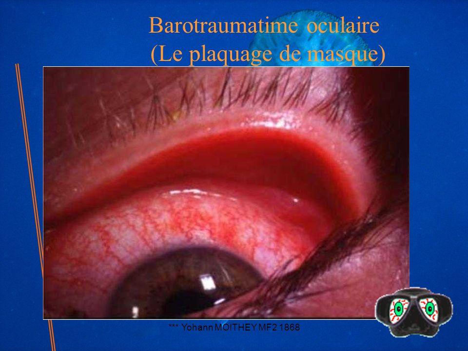 Barotraumatime oculaire (Le plaquage de masque)