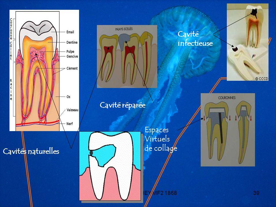 Cavité infectieuse Cavité réparée Espaces Virtuels de collage