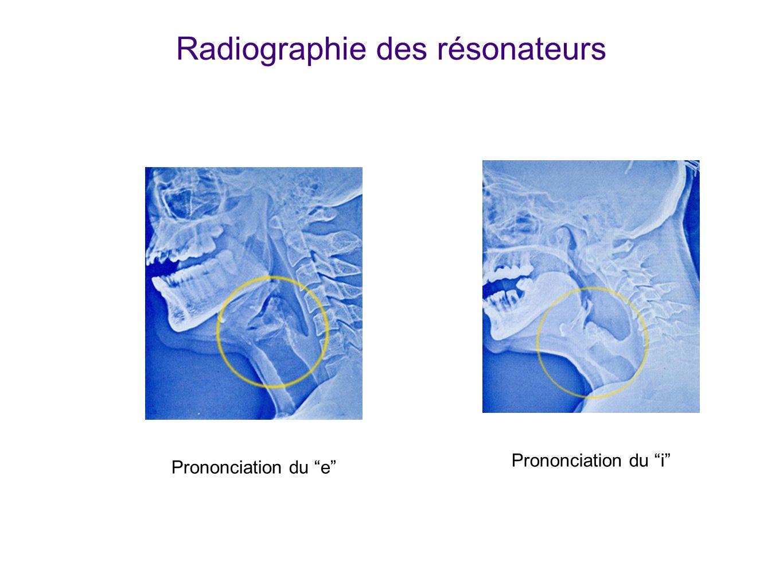 Radiographie des résonateurs