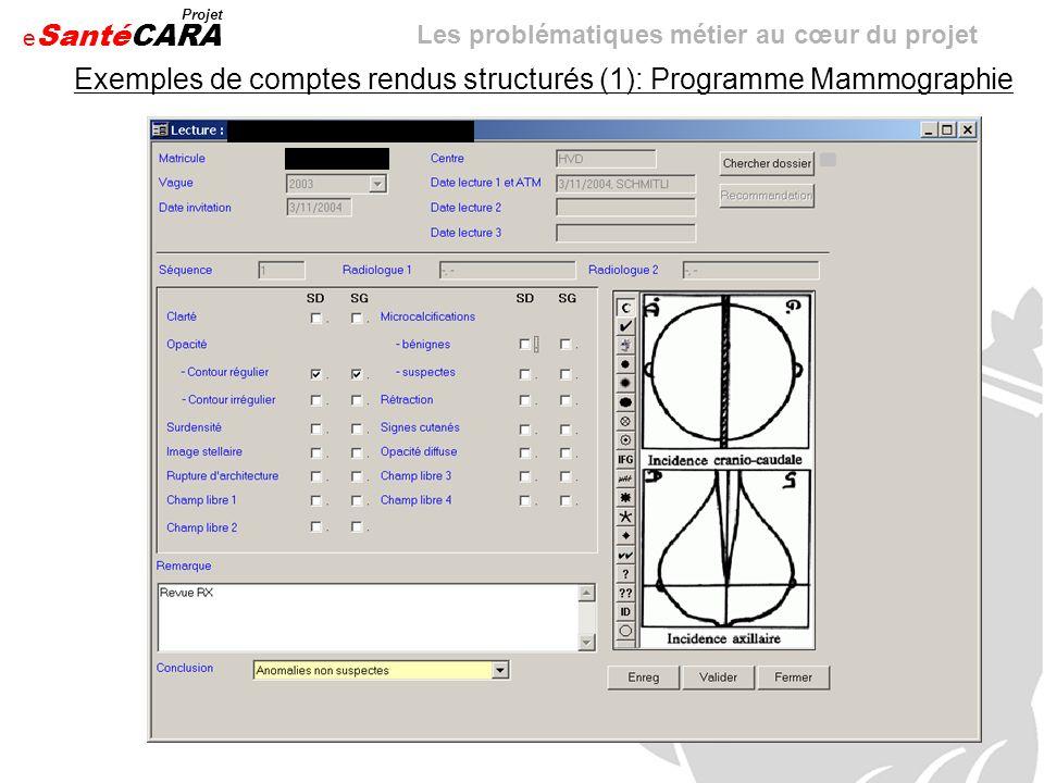 Exemples de comptes rendus structurés (1): Programme Mammographie
