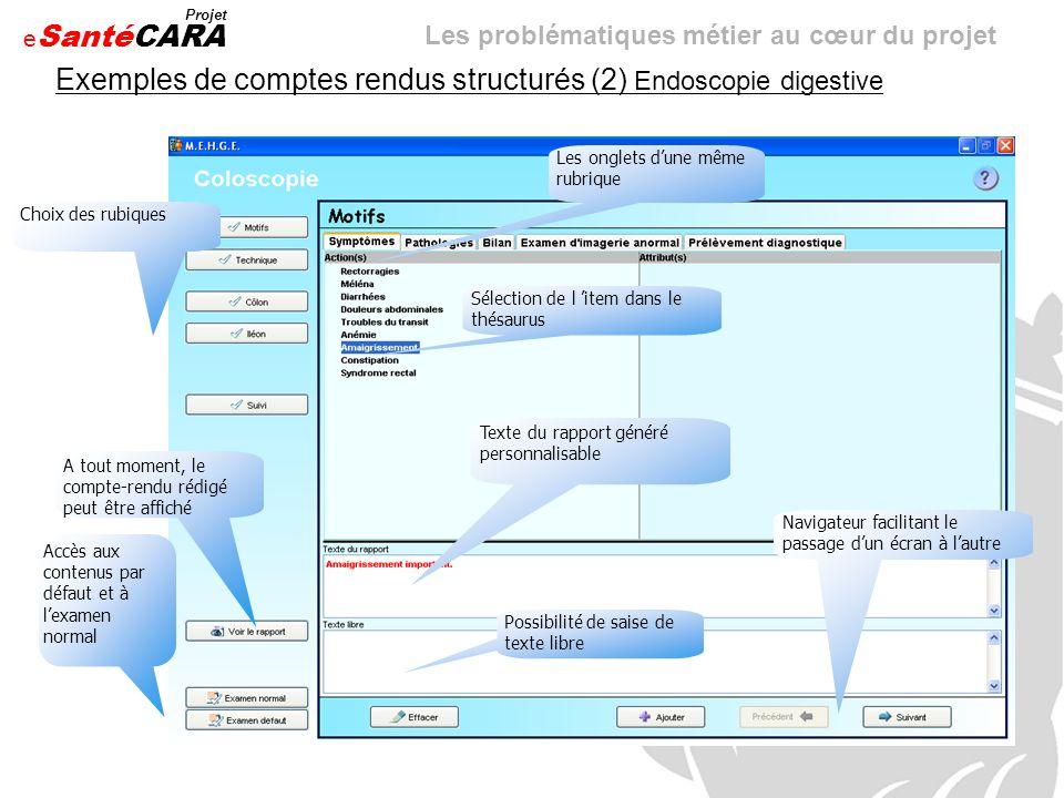 Exemples de comptes rendus structurés (2) Endoscopie digestive