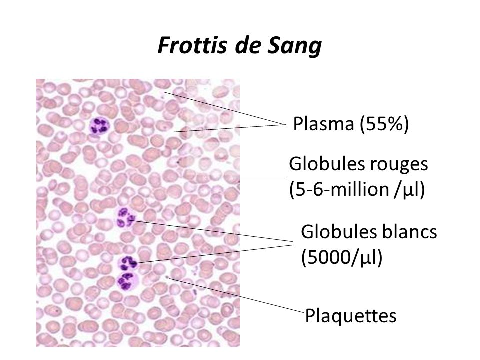 Frottis de Sang Plasma (55%) Globules rouges (5-6-million /µl)