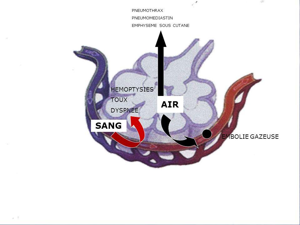 AIR AIR SANG HEMOPTYSIES TOUX DYSPNEE EMBOLIE GAZEUSE PNEUMOTHRAX