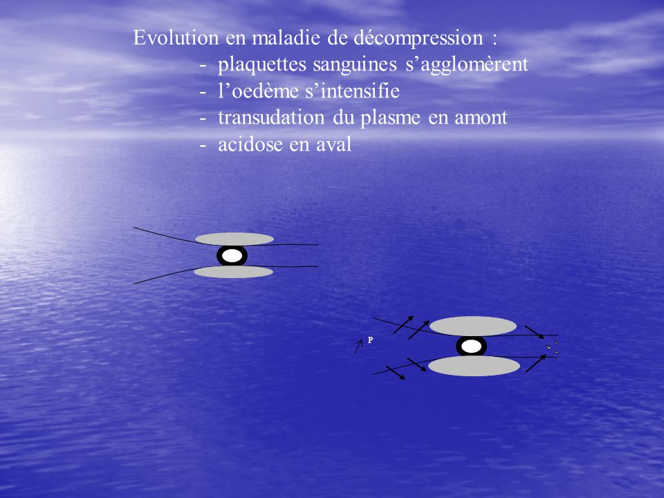 Evolution en maladie de décompression :