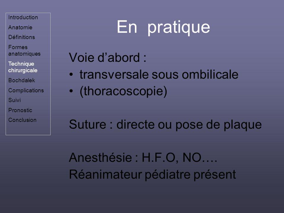 En pratique Voie d'abord : transversale sous ombilicale