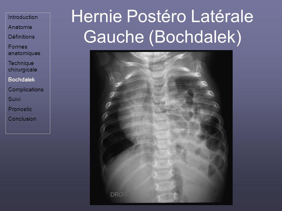 Hernie Postéro Latérale Gauche (Bochdalek)