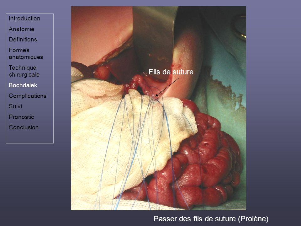 Passer des fils de suture (Prolène)