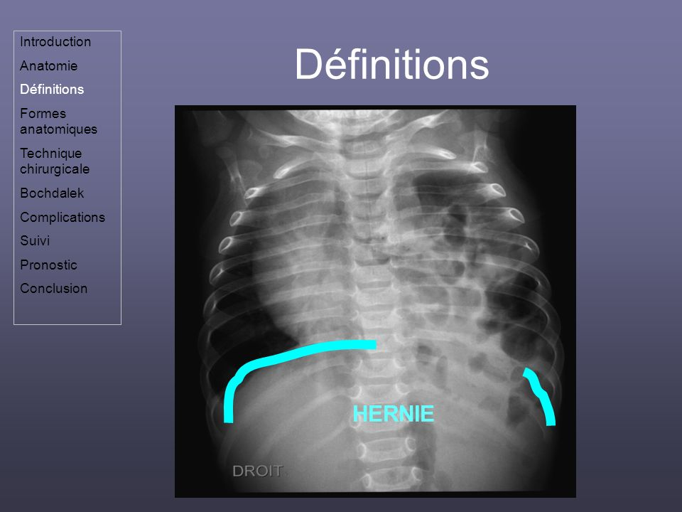 Définitions HERNIE Introduction Anatomie Définitions
