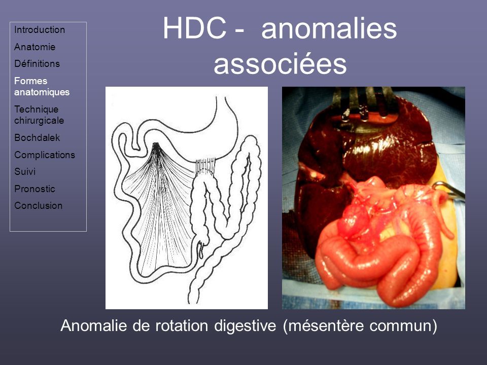 HDC - anomalies associées