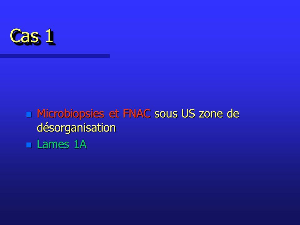Cas 1 Microbiopsies et FNAC sous US zone de désorganisation Lames 1A