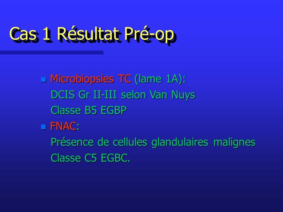 Cas 1 Résultat Pré-op Microbiopsies TC (lame 1A):