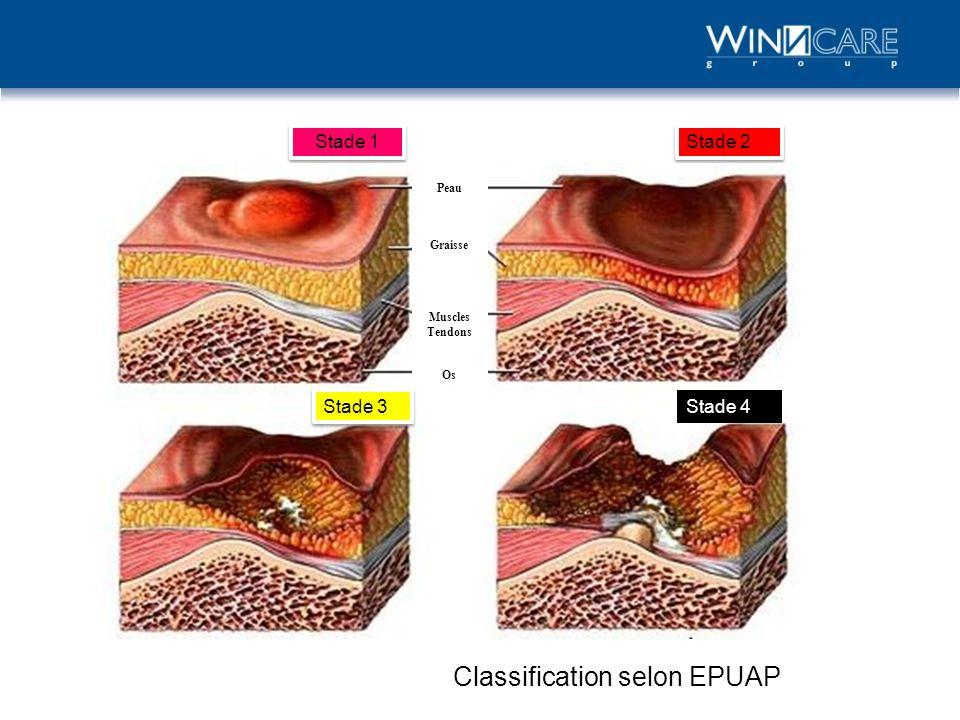 Classification selon EPUAP