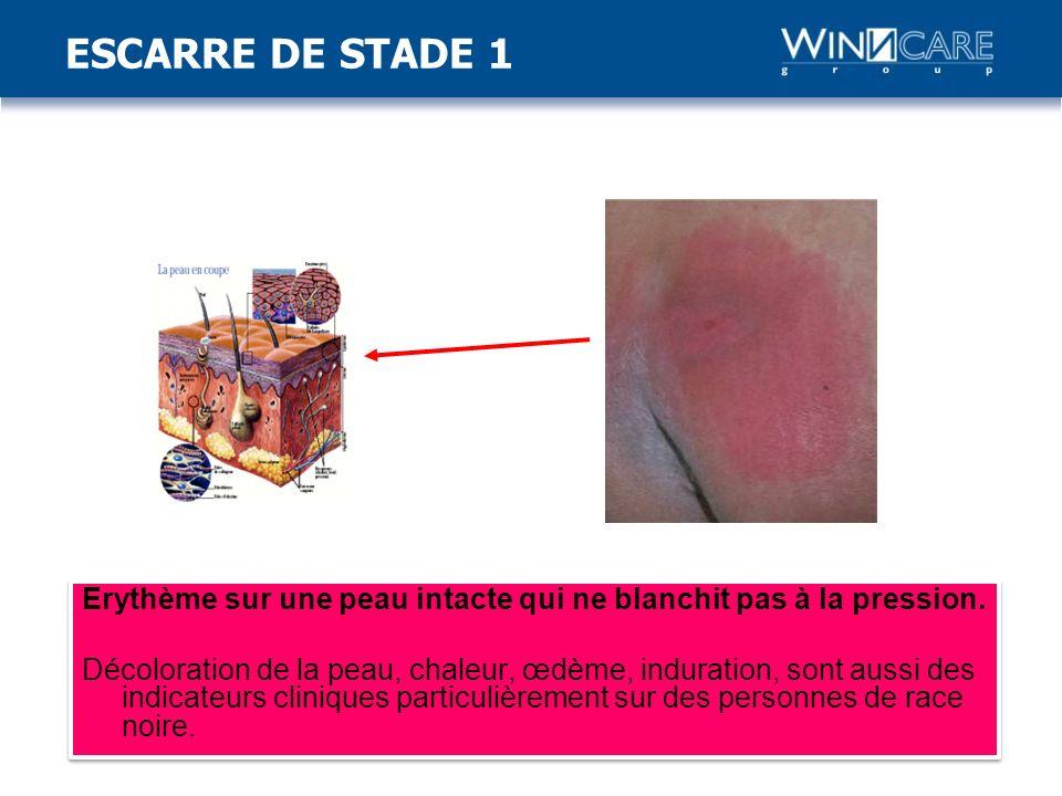 ESCARRE DE STADE 1
