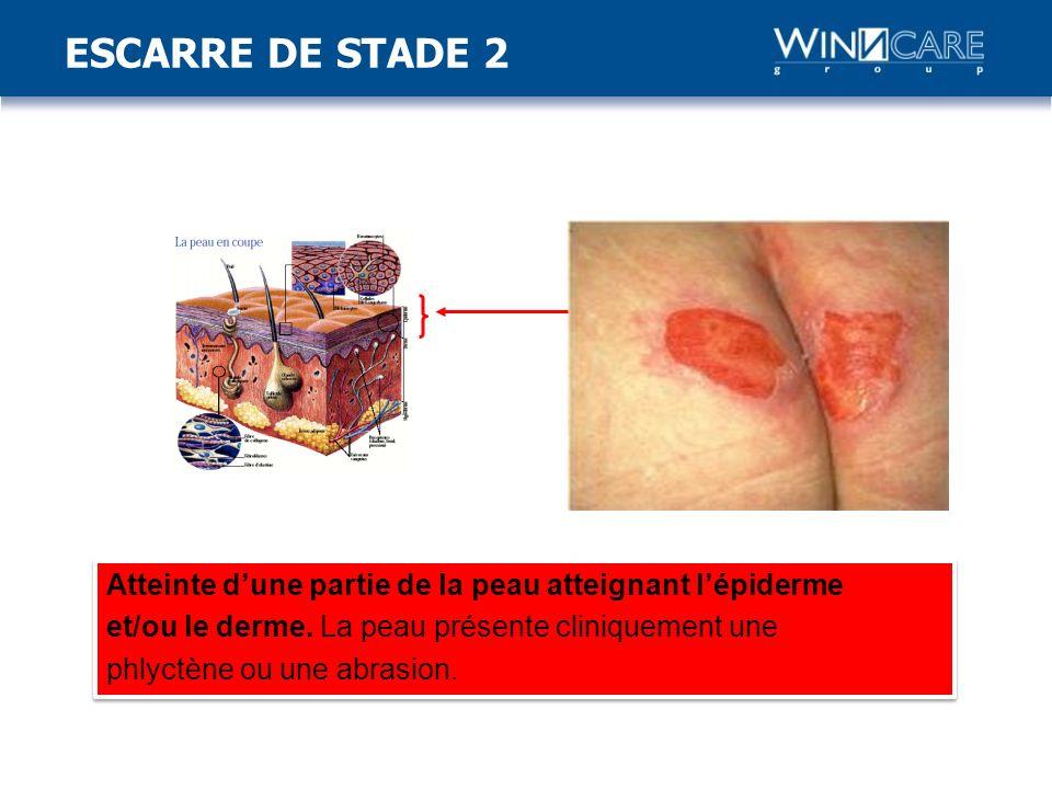 ESCARRE DE STADE 2 Stade 2: