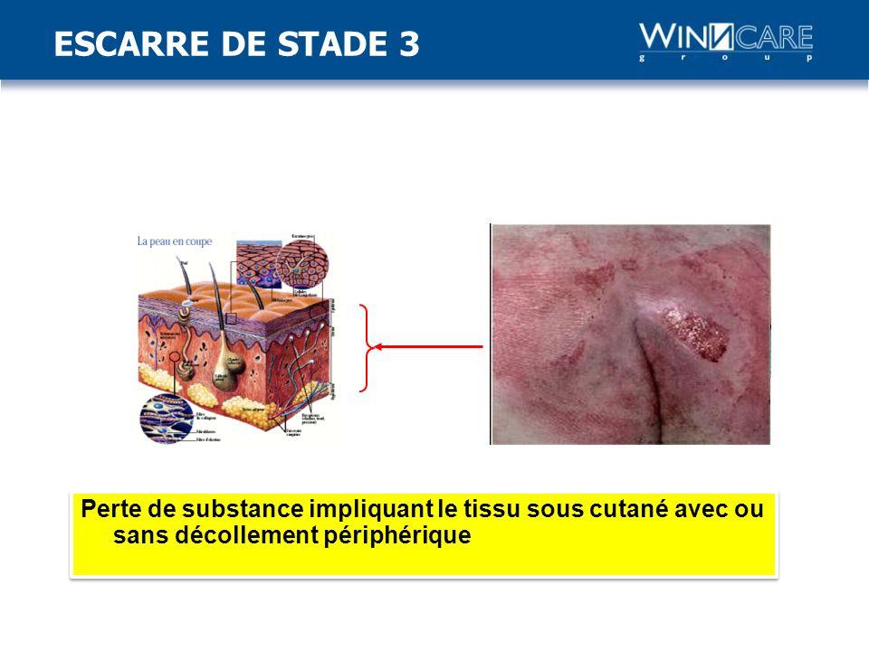 ESCARRE DE STADE 3 Stade 3: Perte de substance impliquant le tissu sous-cutané avec ou sans décollement périphérique. Fascia.