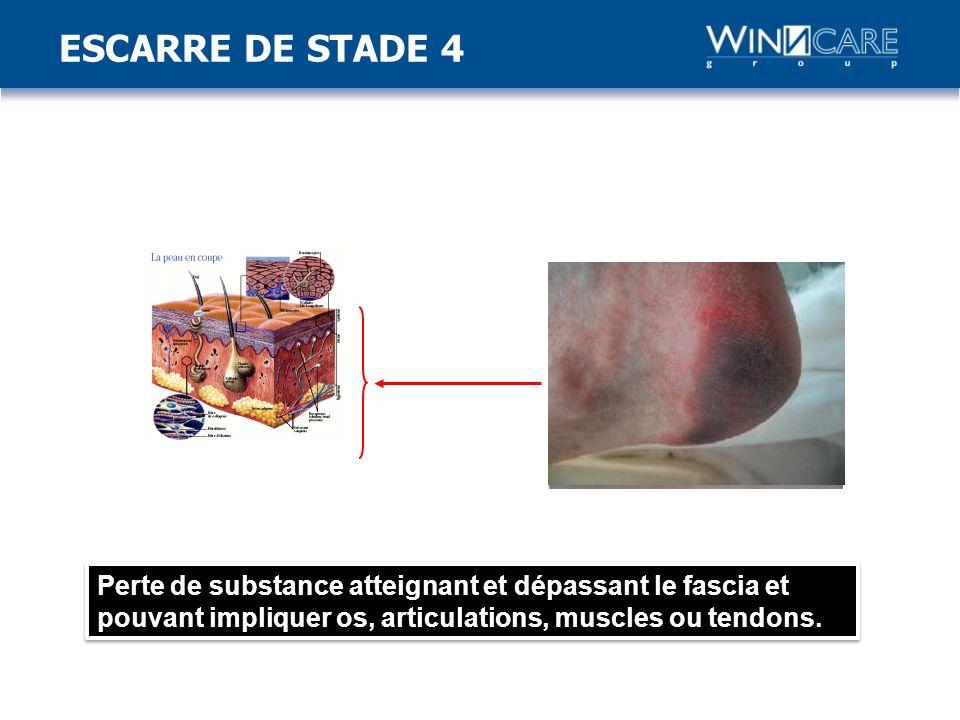 ESCARRE DE STADE 4 Stade 4: Perte de substance atteignant et dépassant le fascia et pouvant impliquer os, articulations, muscles ou tendons.
