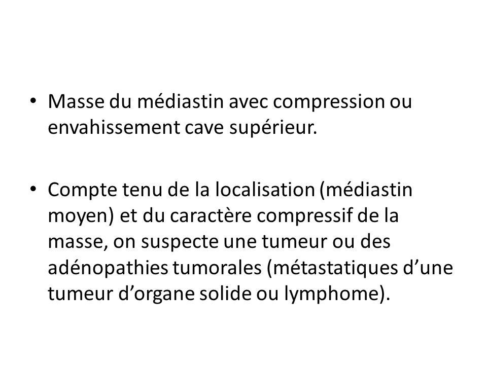 Masse du médiastin avec compression ou envahissement cave supérieur.