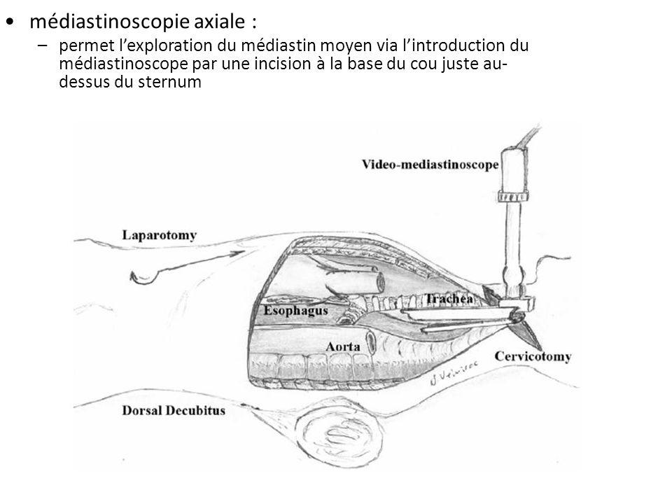 médiastinoscopie axiale :