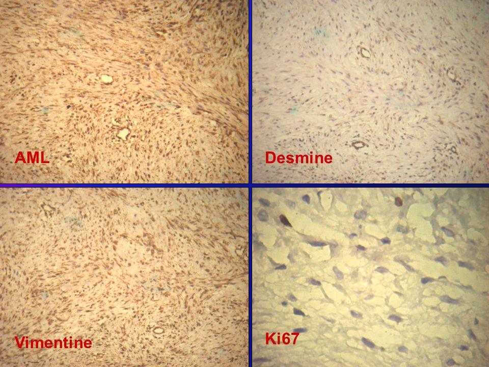 AML Desmine Ki67 Vimentine