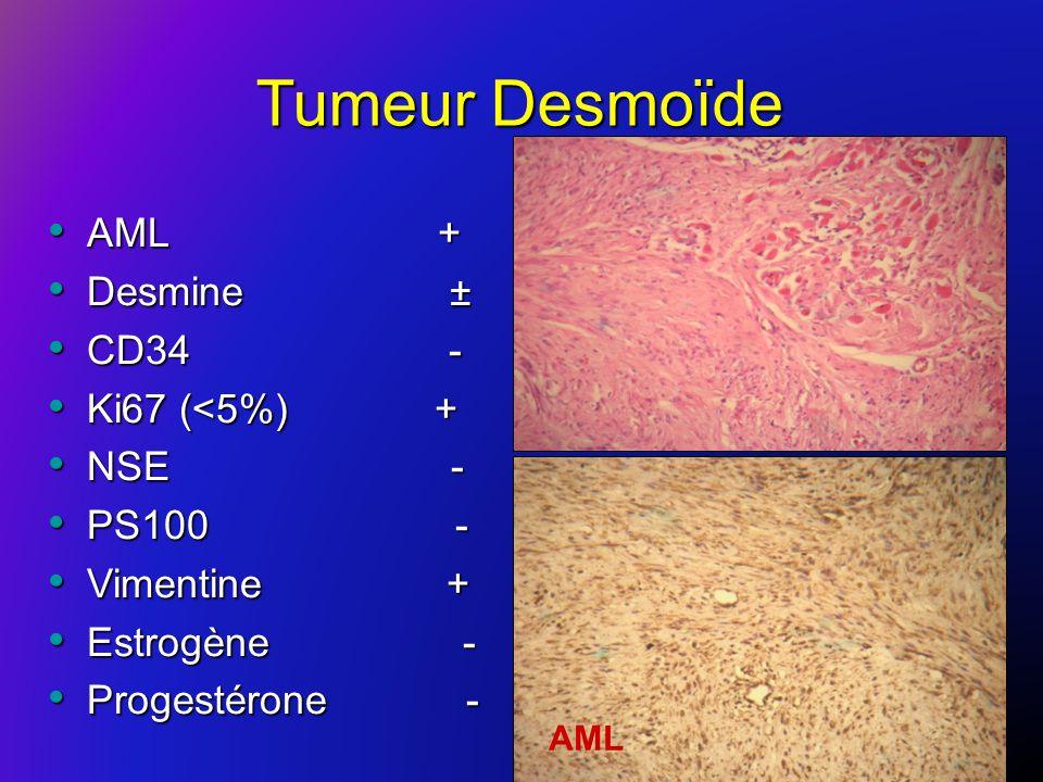 Tumeur Desmoïde AML + Desmine ± CD34 - Ki67 (<5%) + NSE - PS100 -