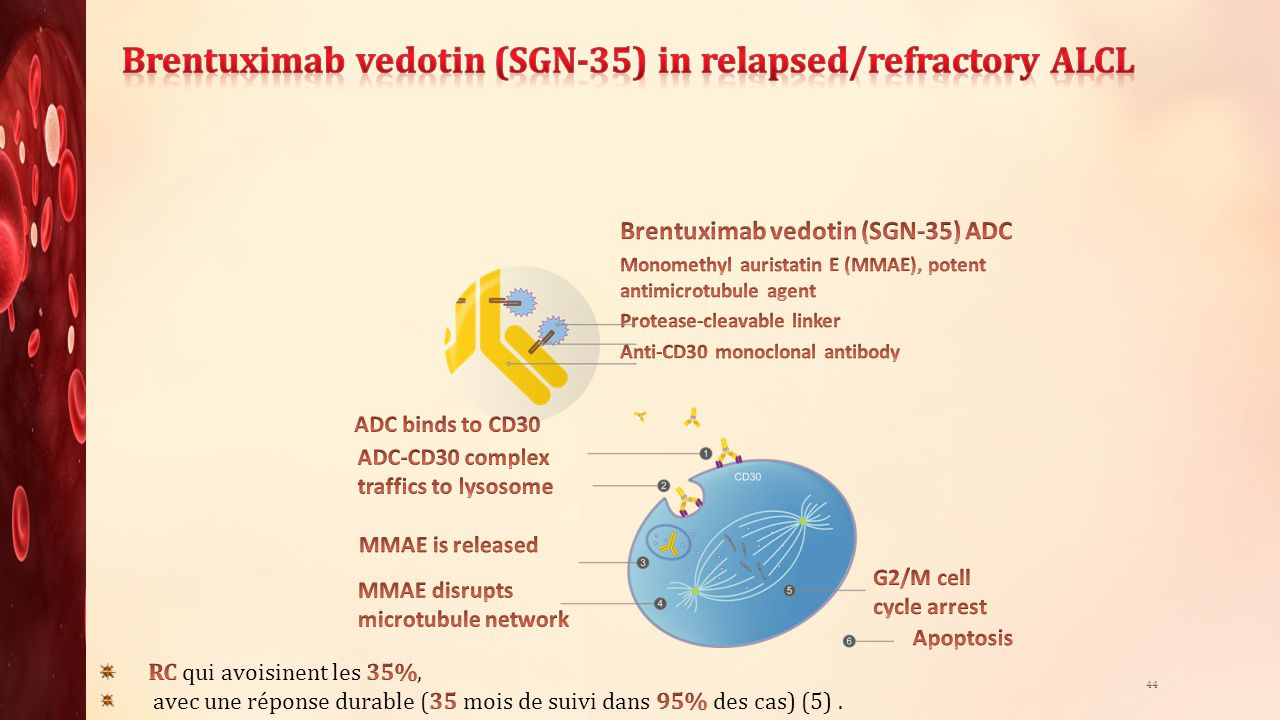 Brentuximab vedotin (SGN-35) in relapsed/refractory ALCL