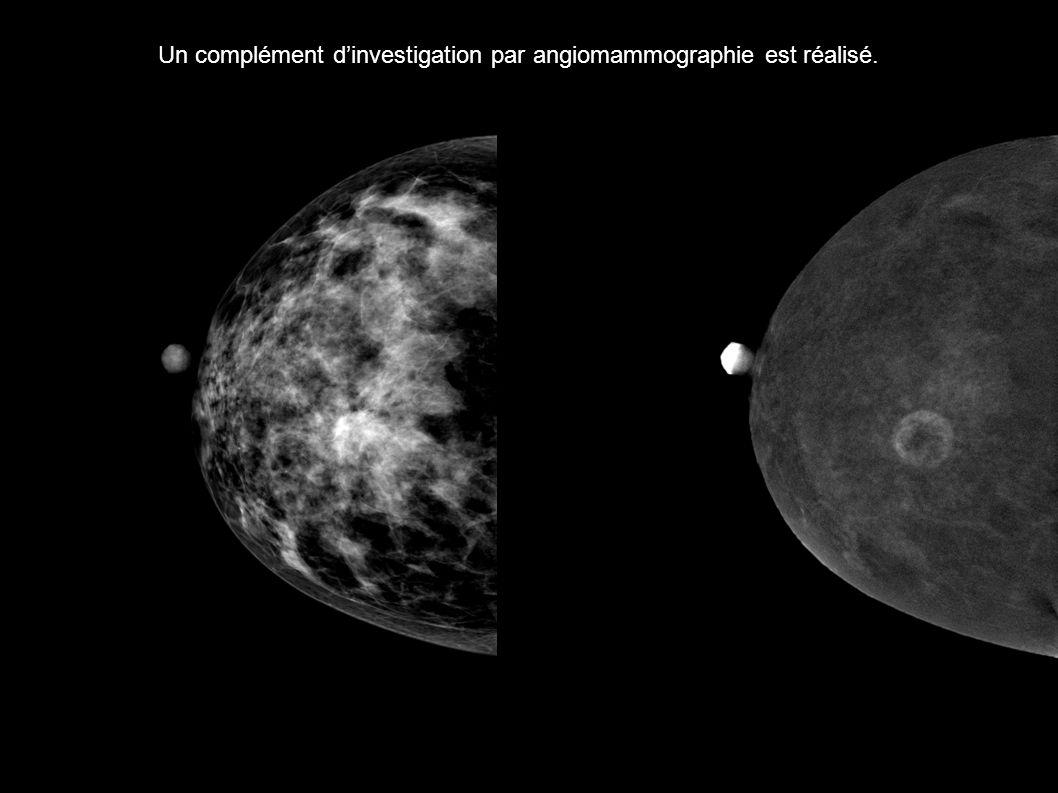 Un complément d'investigation par angiomammographie est réalisé.