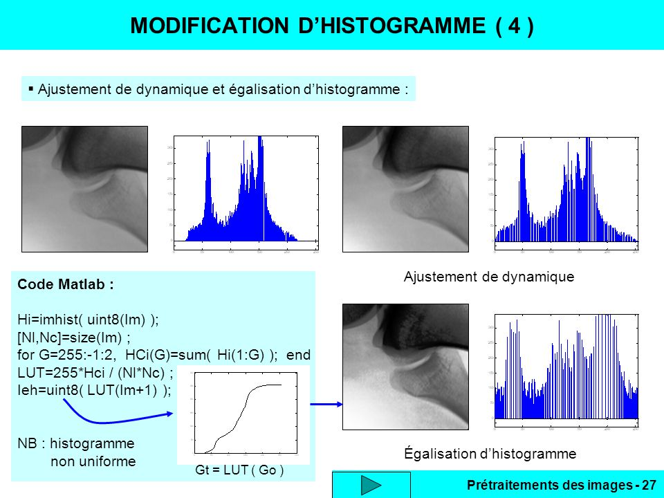 MODIFICATION D'HISTOGRAMME ( 4 )