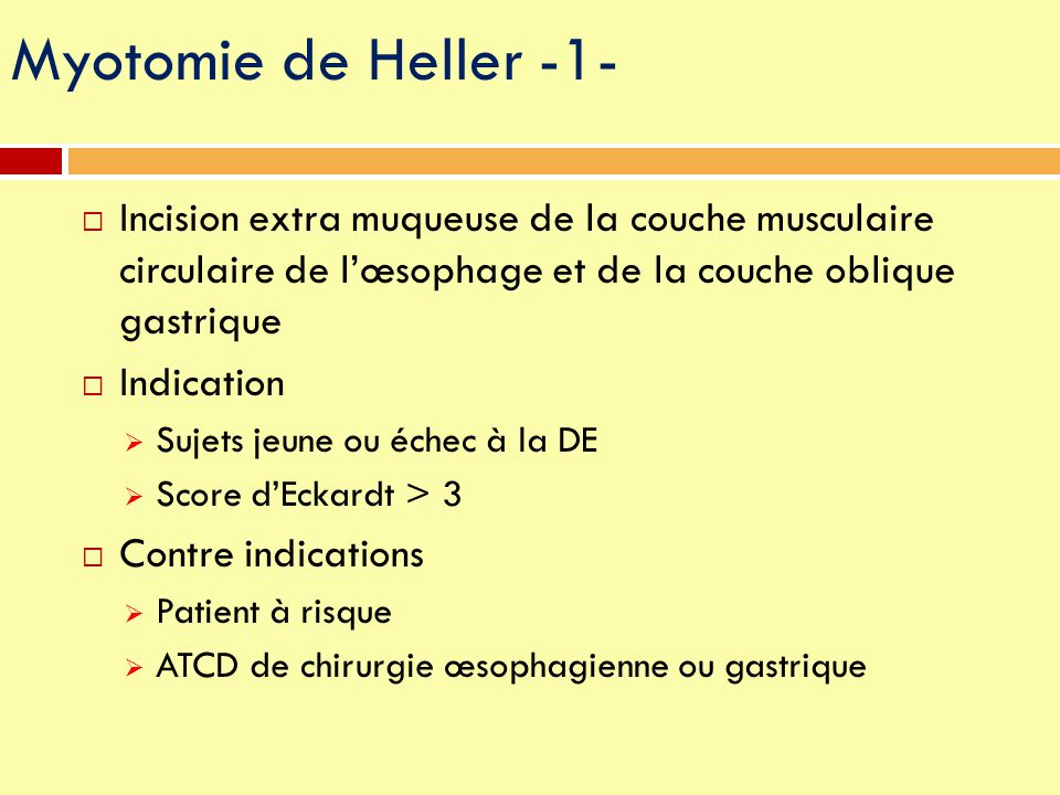 Myotomie de Heller -1- Incision extra muqueuse de la couche musculaire circulaire de l'œsophage et de la couche oblique gastrique.