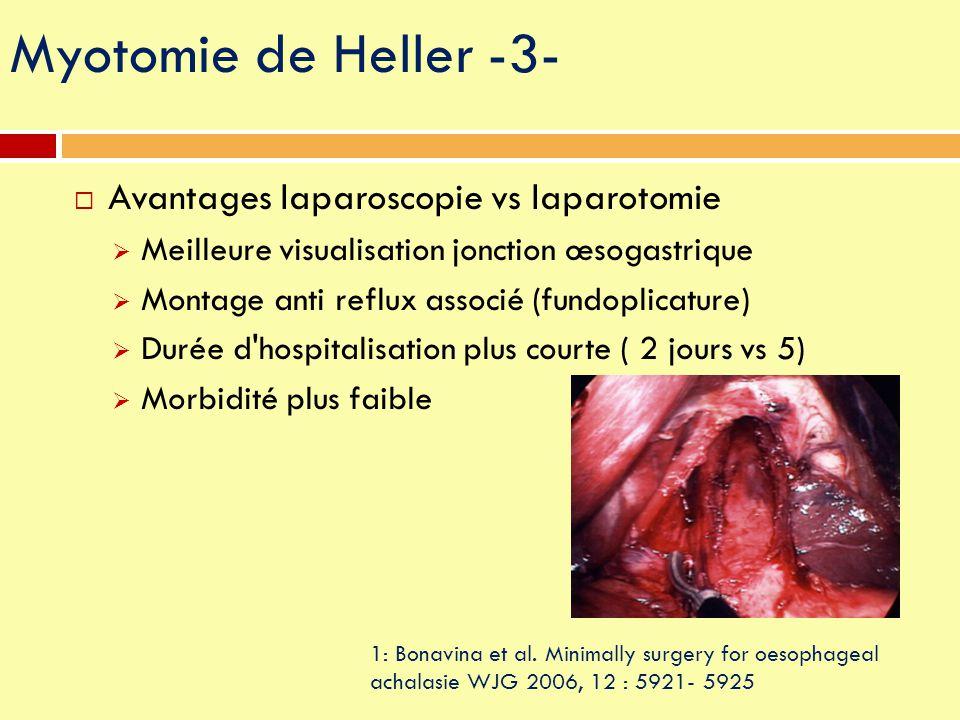 Myotomie de Heller -3- Avantages laparoscopie vs laparotomie