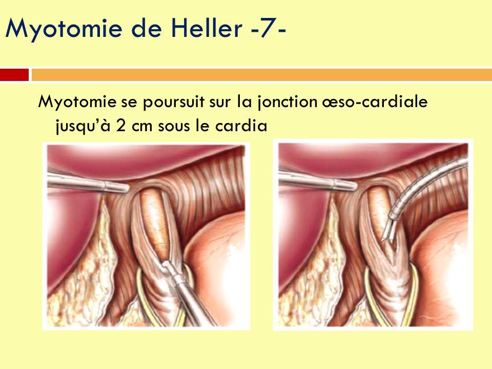 Myotomie de Heller -7- Myotomie se poursuit sur la jonction œso-cardiale jusqu'à 2 cm sous le cardia.