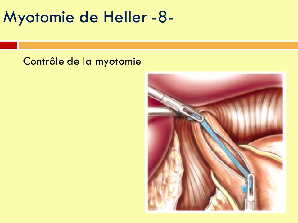 Myotomie de Heller -8- Contrôle de la myotomie