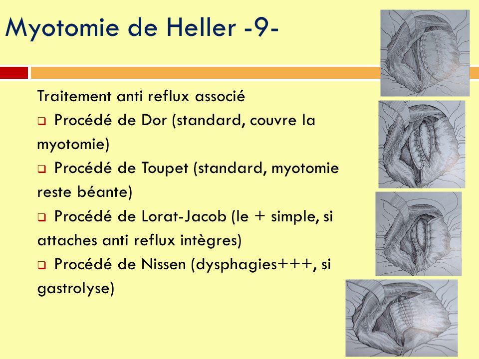 Myotomie de Heller -9- Traitement anti reflux associé