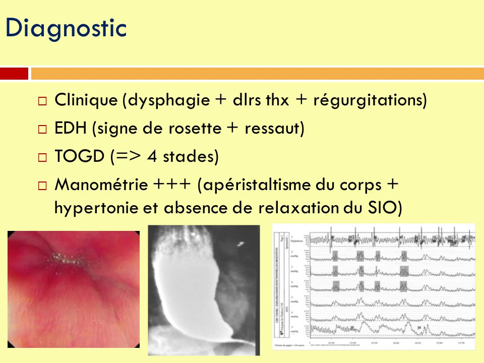 Diagnostic Clinique (dysphagie + dlrs thx + régurgitations)