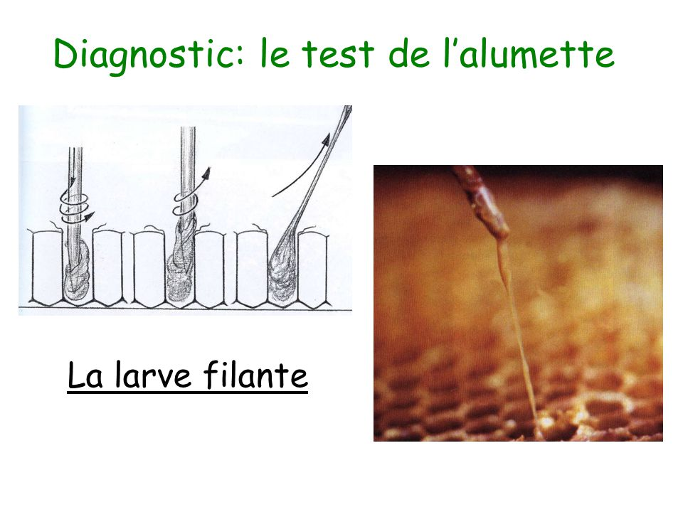 Diagnostic: le test de l'alumette