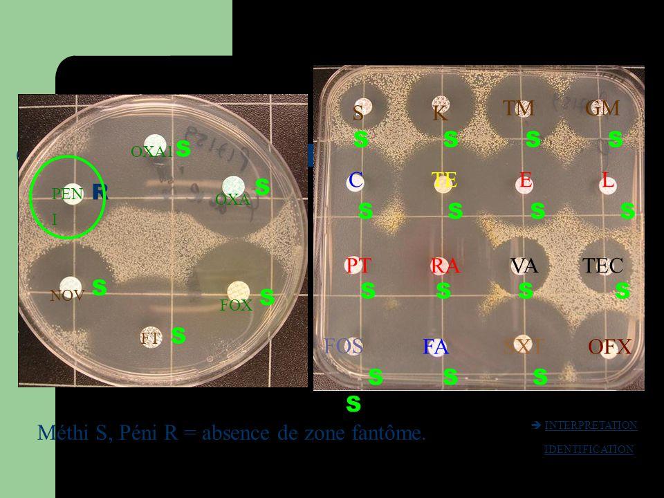 Méthi S, Péni R = absence de zone fantôme.