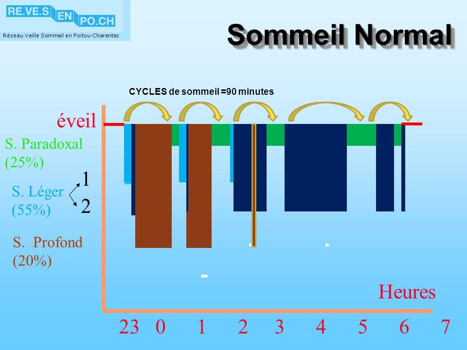 Sommeil Normal éveil 1 2 Heures 23 0 1 2 3 4 5 6 7 S. Paradoxal (25%)
