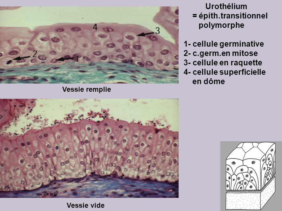 4- cellule superficielle en dôme