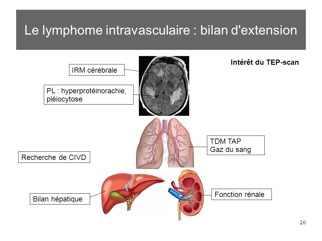Le lymphome intravasculaire : bilan d extension