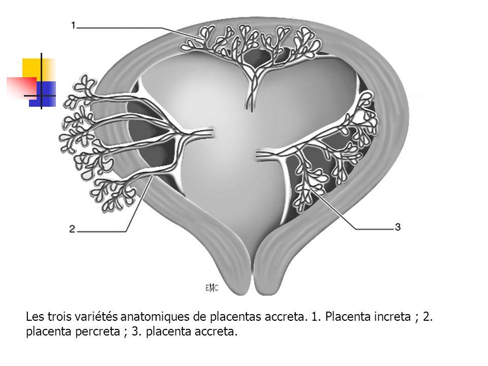 Les trois variétés anatomiques de placentas accreta. 1