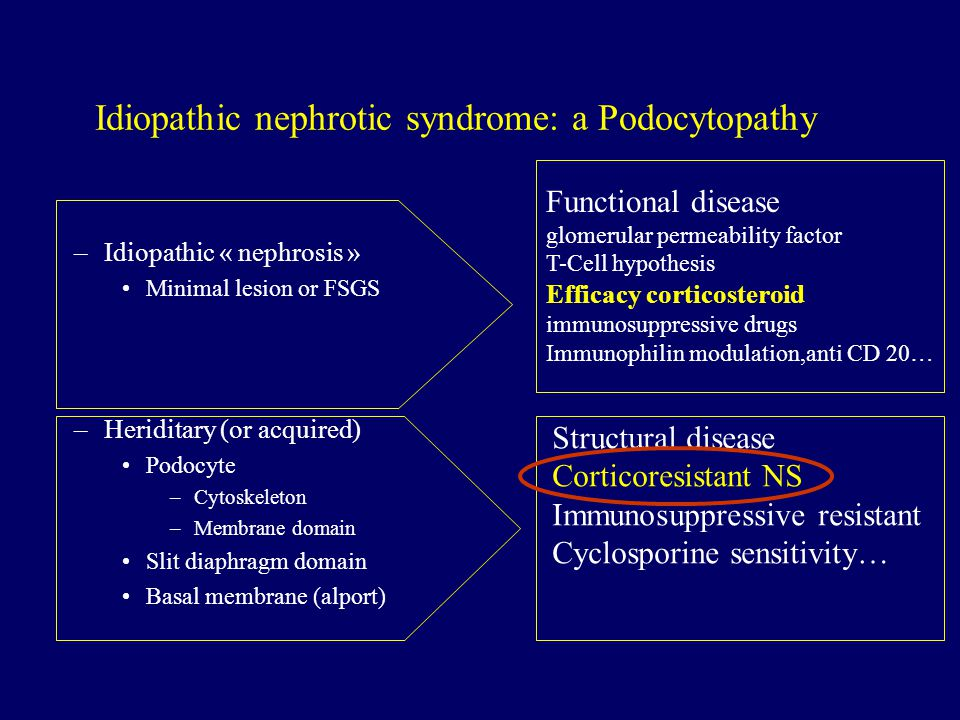 Idiopathic nephrotic syndrome: a Podocytopathy