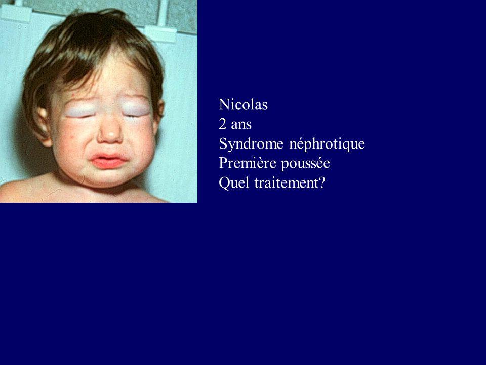 Nicolas 2 ans Syndrome néphrotique Première poussée Quel traitement