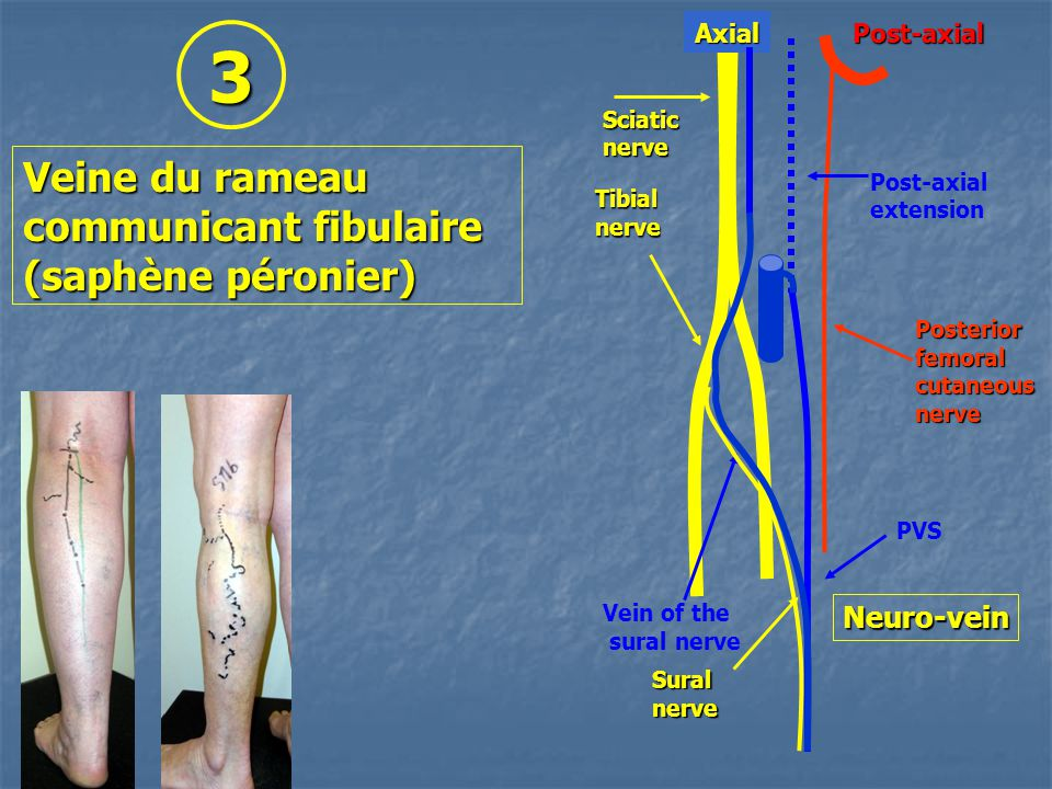 3 Veine du rameau communicant fibulaire (saphène péronier) Neuro-vein