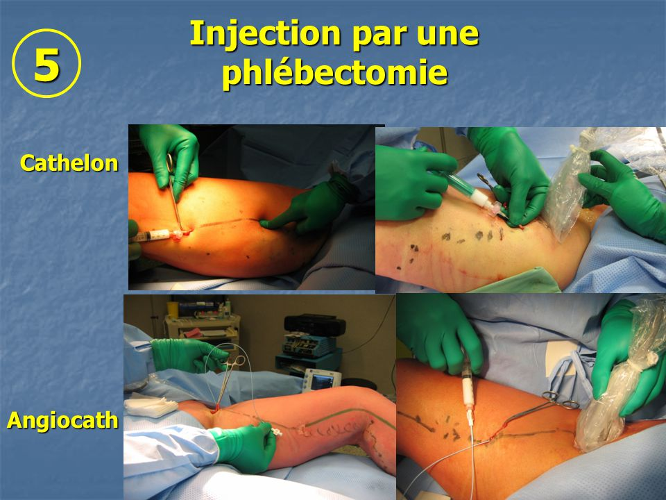 Injection par une phlébectomie