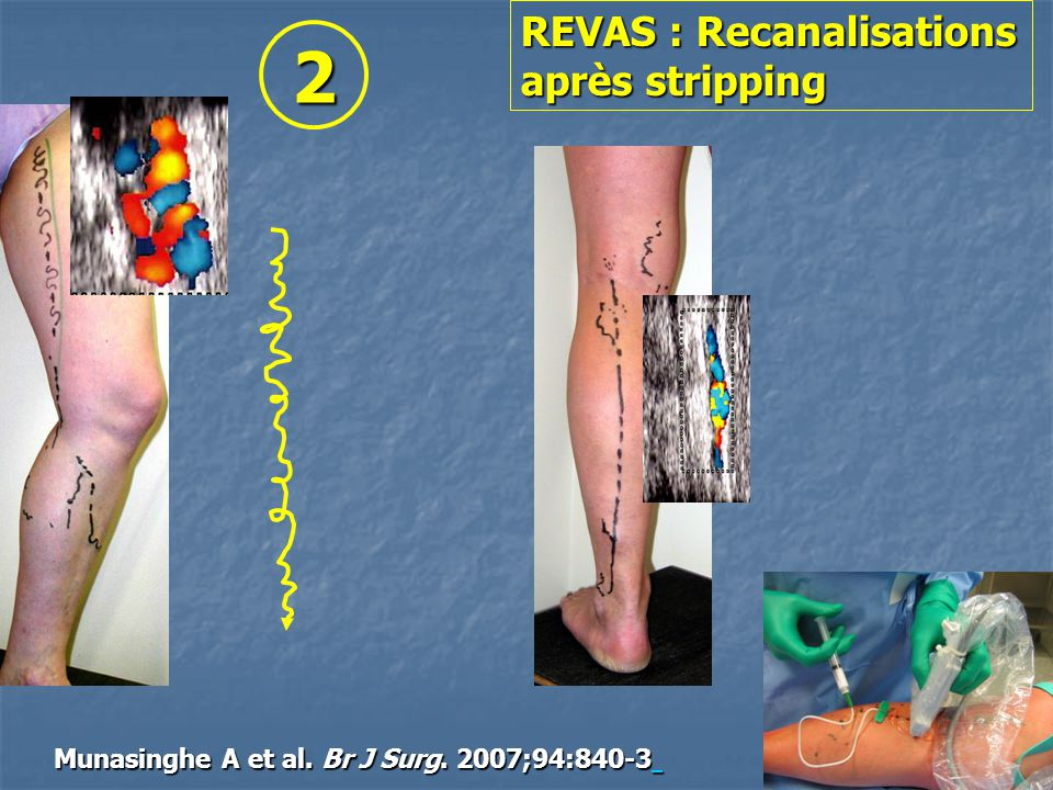 2 REVAS : Recanalisations après stripping